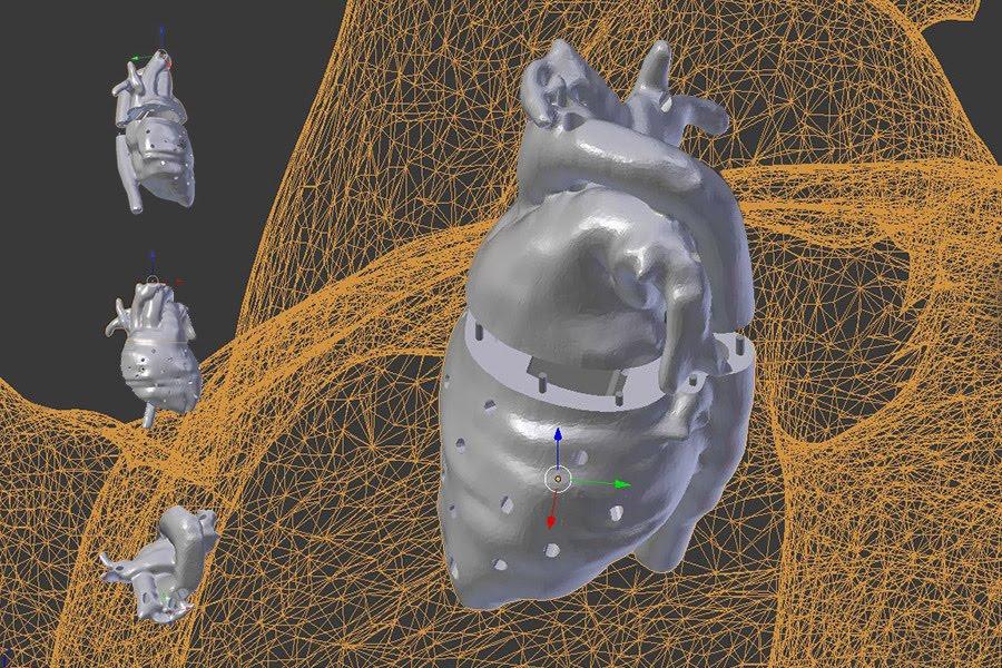 surgery 3-d modeling.jpg